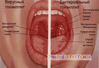 faringit