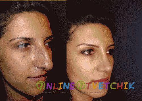 операция на нос минусы