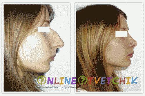 операция на нос плюсы