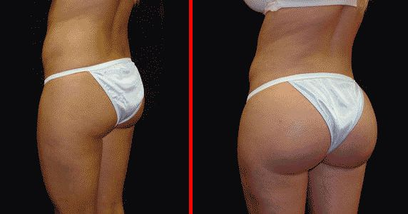 Глютеопластика - до и после