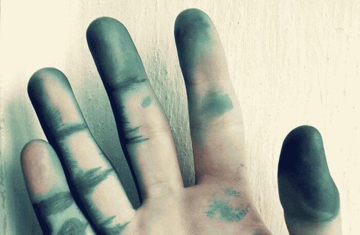 Как-отмыть-зеленку-с-кожи