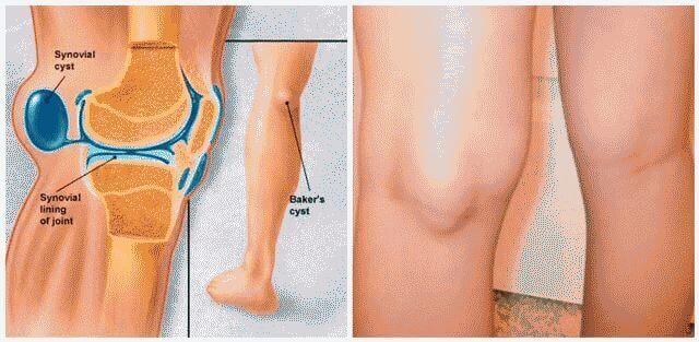 Что делать, если болит колено?
