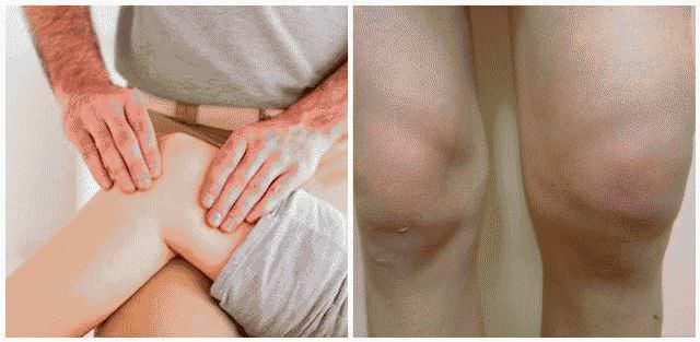 Что Принимать При Артрите Пальцев Рук