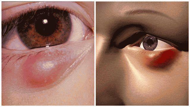 Как вылечить ячмень на глазу быстро в домашних условиях?