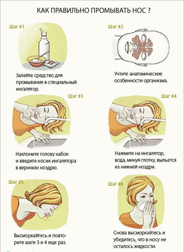 Как вылечить насморк за один день в домашних условиях?