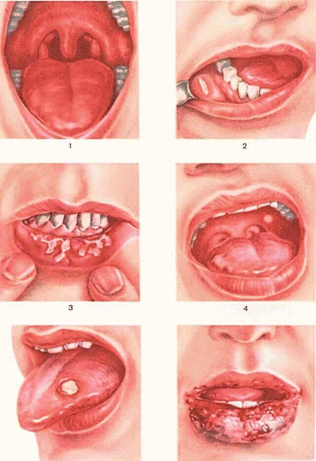Как вылечить стоматит во рту быстро?