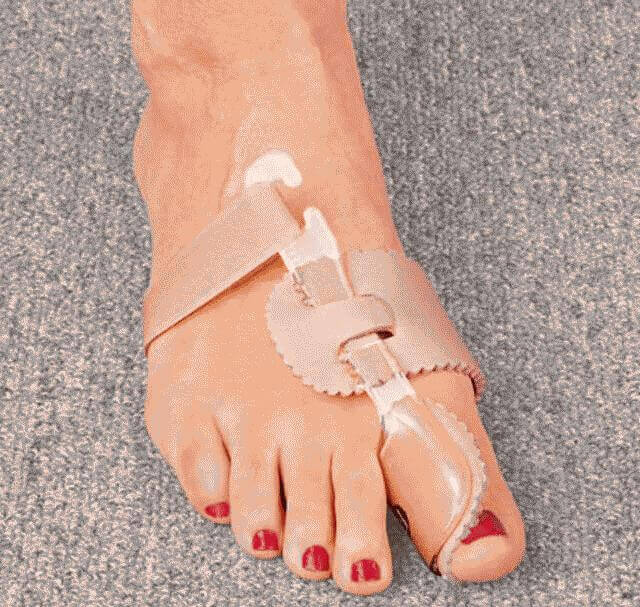 Косточка на ноге - причины симптомы лечение народные рецепты