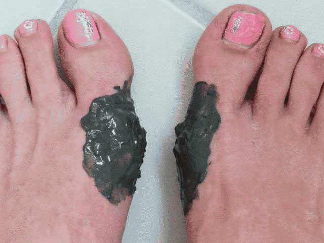Как лечить косточку на ноге у большого пальца в домашних условиях?