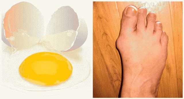 Как быстро и эффективно вылечить народными средствами косточку на ноге