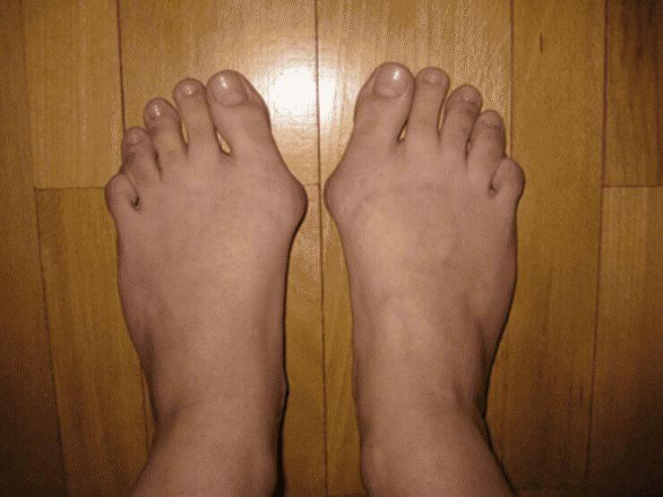 Как лечить косточку на ноге у большого пальца в домашних условиях методы