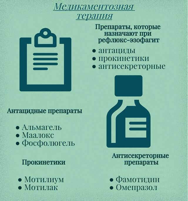Рефлюкс-эзофагит: лечение, препараты