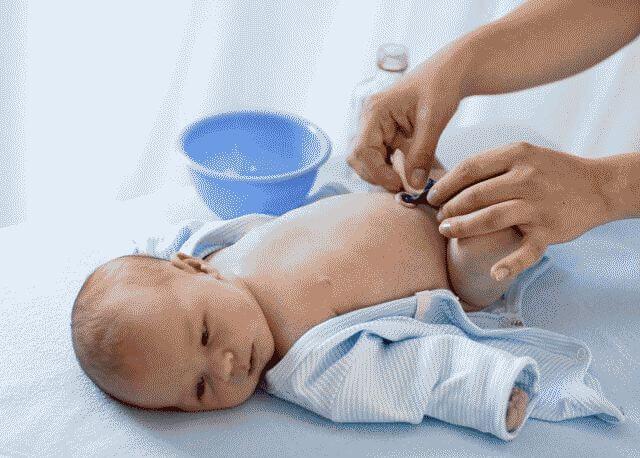 Обработка пупочной ранки у новорожденного